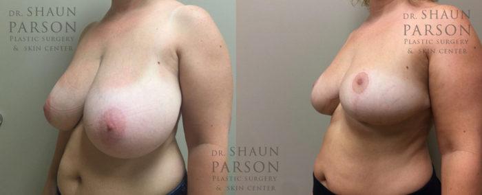 Breast Lift Patient 17 | Dr. Shaun Parson Plastic Surgery, Scottsdale, Arizona