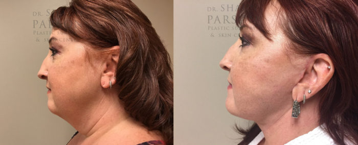 Facelift Patient 18 | Dr. Shaun Parson Plastic Surgery Scottsdale Arizona