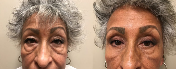 Eyelid Surgery Patient 21   Dr. Shaun Parson Plastic Surgery, Scottsdale, Arizona