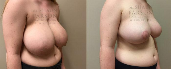 Breast Lift Patient 16 | Dr. Shaun Parson Plastic Surgery, Scottsdale, Arizona