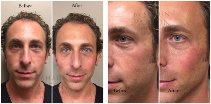 Dermal Filler Patient 6 | Dr. Shaun Parson Plastic Surgery, Scottsdale, Arizona