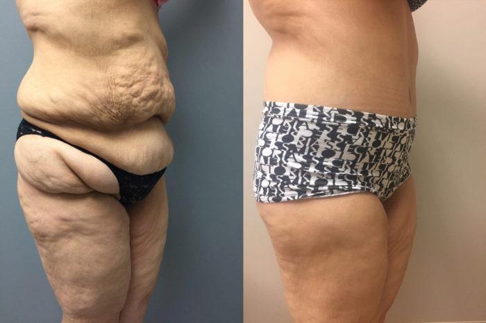 Body Lift Patient 6 | Dr. Shaun Parson Plastic Surgery, Scottsdale, Arizona