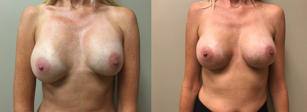 Breast Revision Patient 10 | Scottsdale, AZ