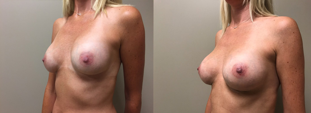 Breast Revision Patient 10 | Scottsdale, AZ