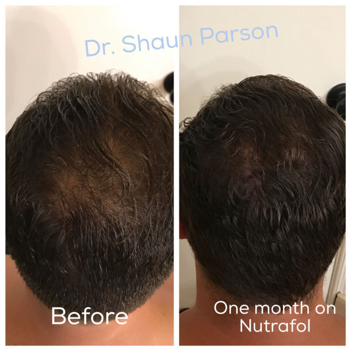 Hair Restoration Patient 2 | Scottsdale, AZ