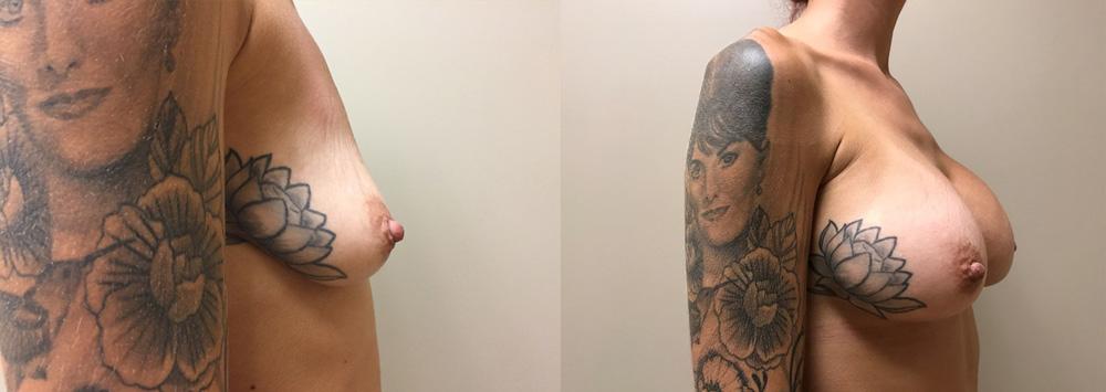 Breast Augmentation Patient   Dr. Shaun Parson, Scottsdale, AZ