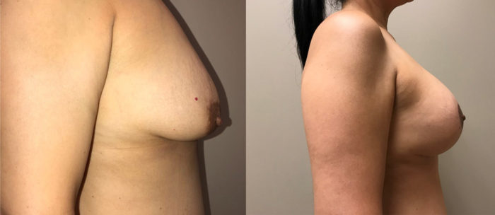 Breast Lift with Augmentation Patient 18 | Scottsdale, AZ