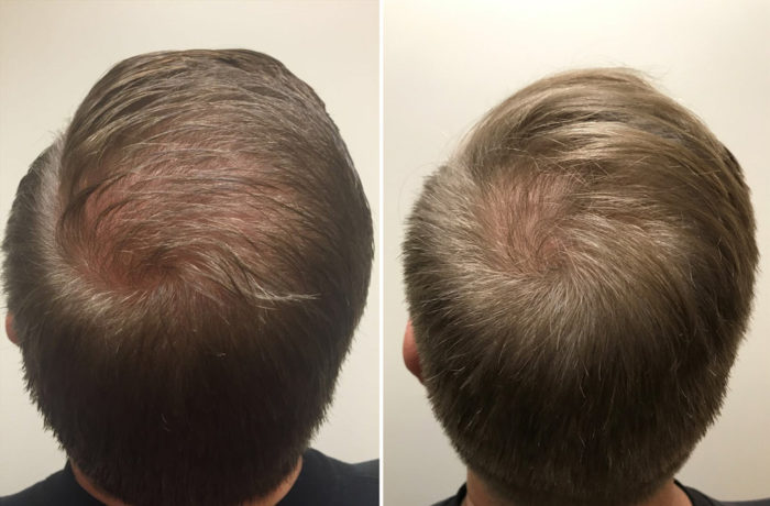 PRP Hair Restoration Patient 1 | Scottsdale, AZ