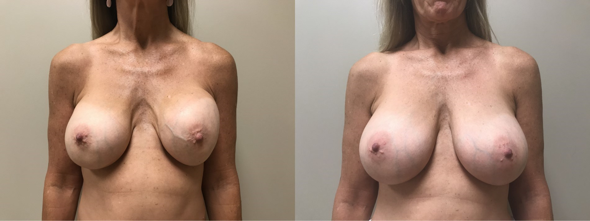 Breast Revision Patient 11 | Scottsdale, AZ | Dr. Shaun Parson