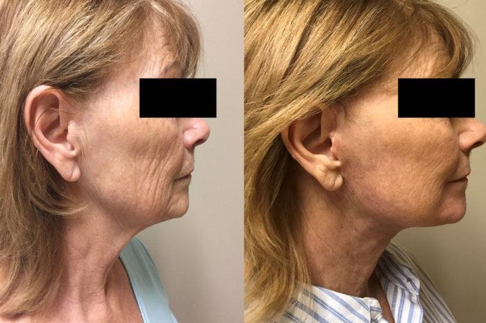 Facelift Patient 19 | Dr. Shaun Parson Scottsdale, AZ