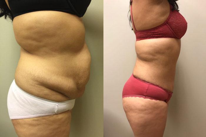 Tummy Tuck Patient 24 | Dr. Shaun Parson, Scottsdale