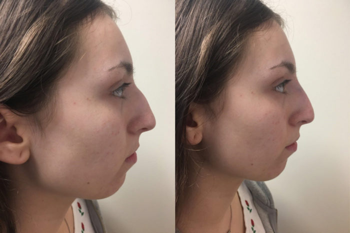 Dermal Filler Patient 8 | Parson Skin Center, Scottsdale