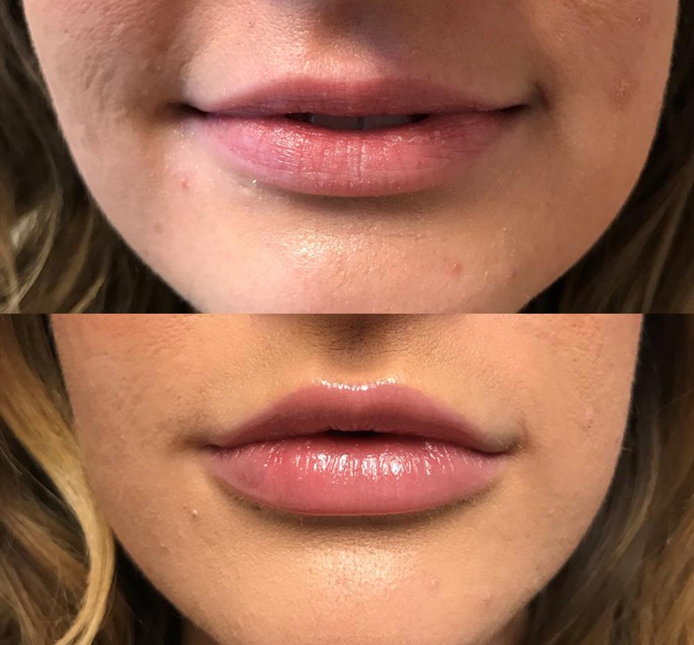 Dermal Filler Patient 9 | Juvederm Lips | Dr. Shaun Parson | Scottsdale