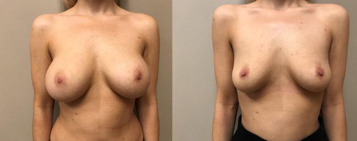 Explant Surgery Patient 3 | Scottsdale, AZ | Dr. Shaun Parson
