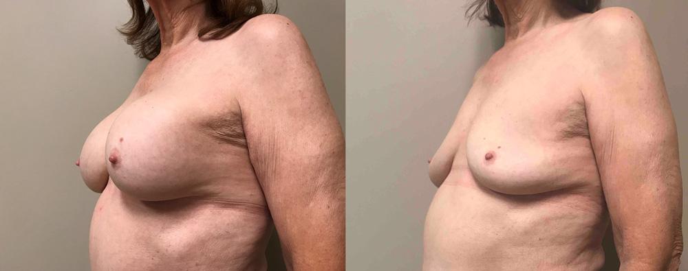 Explant Surgery Patient 2 | Scottsdale, AZ | Dr. Shaun Parson