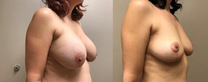 Explant Surgery Patient 1 | Scottsdale, AZ | Dr. Shaun Parson