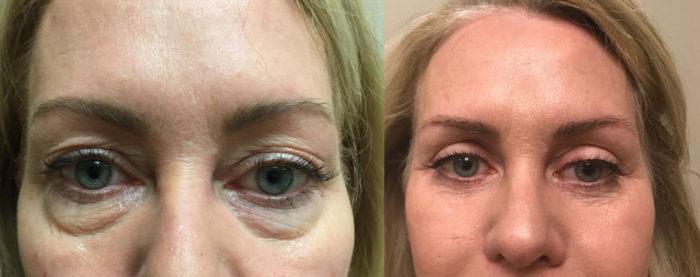 Eyelid Surgery Patient 24 | Dr. Shaun Parson Plastic Surgery, Scottsdale, Arizona