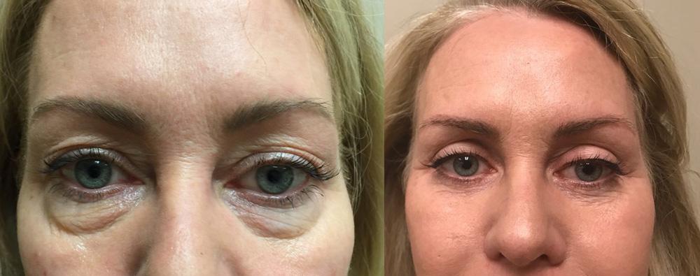 Eyelid Surgery Patient 24   Dr. Shaun Parson Plastic Surgery, Scottsdale, Arizona