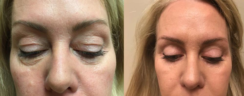 Eyelid Surgery Patient 23   Dr. Shaun Parson Plastic Surgery, Scottsdale, Arizona