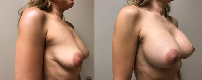 Breast Augmentation Patient 35 | Dr. Shaun Parson Plastic Surgery, Scottsdale, Arizona