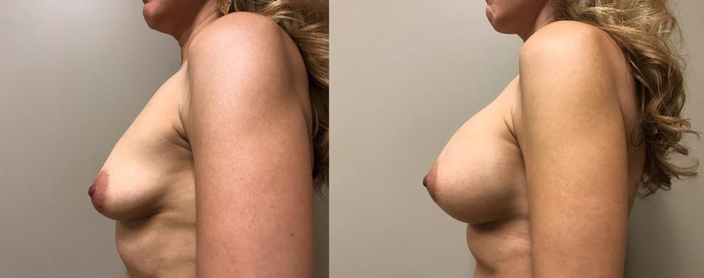 Breast Augmentation Patient 35 | Dr. Shaun Parson Plastic Surgery, Scottsdale, Arizona