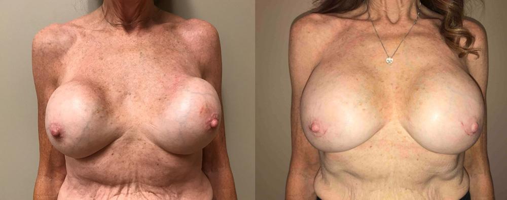 Breast Revision Patient 12 | Scottsdale, AZ | Dr. Shaun Parson