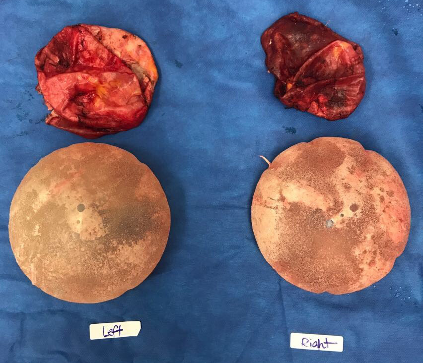 Internal breast lift after explant