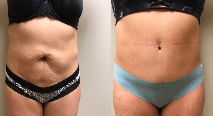 Tummy Tuck Patient 26 | Dr. Shaun Parson, Scottsdale