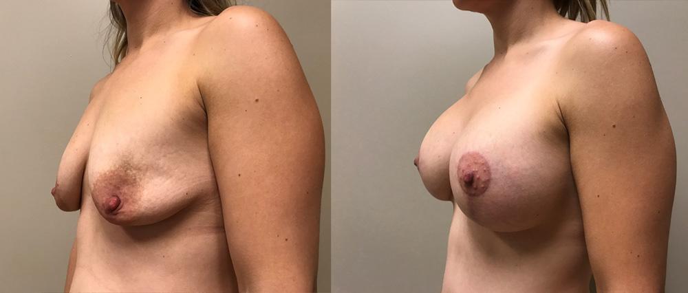 Mommy Makeover Patient 4 | Dr. Shaun Parson Plastic Surgery Scottsdale Arizona