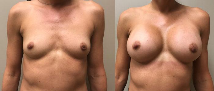 Breast Augmentation Patient 36 | Dr. Shaun Parson Plastic Surgery Scottsdale Arizona