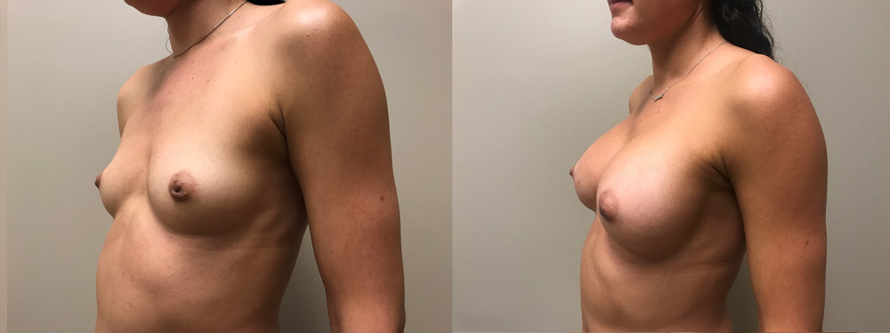 Breast Augmentation Patient 36 | Scottsdale Plastic Surgeon