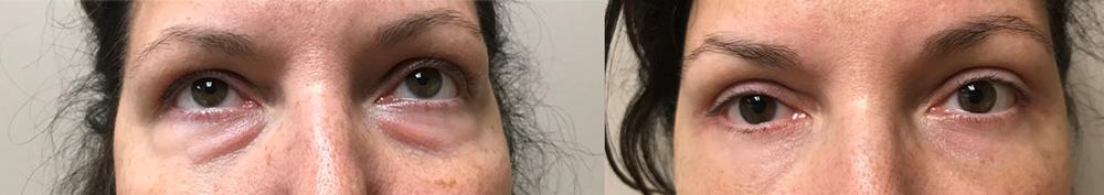 Eyelid Surgery Patient 23 | Dr. Shaun Parson Plastic Surgery, Scottsdale, Arizona