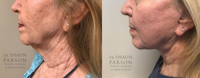 Facelift Patient 20 | Dr. Shaun Parson Scottsdale, AZ