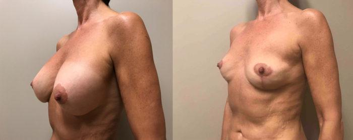 Explant Surgery Patient 4 | Scottsdale, AZ | Dr. Shaun Parson