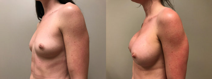 Breast Augmentation Patient 37 | Dr. Shaun Parson Plastic Surgery, Scottsdale, Arizona