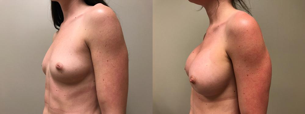 Breast Augmentation Patient 37 | Dr. Shaun Parson Plastic Surgery, Scottsdale, Arizona