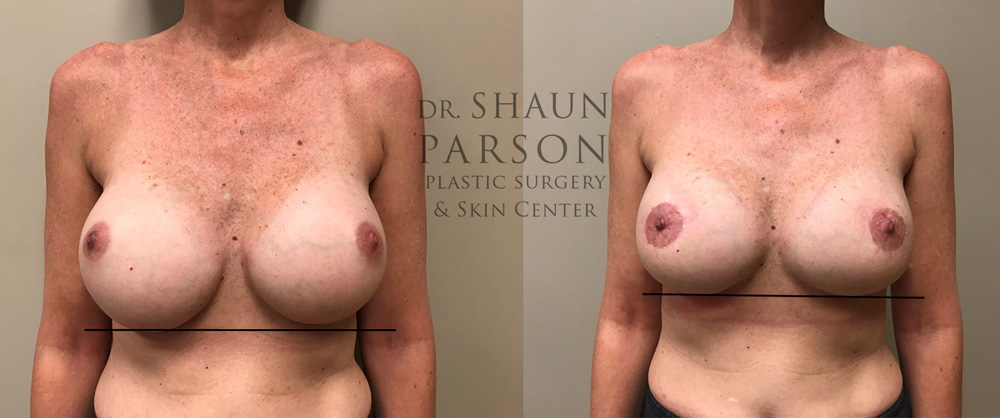 Breast Revision Patient 13 | Dr. Shaun Parson Plastic Surgery, Scottsdale, Arizona