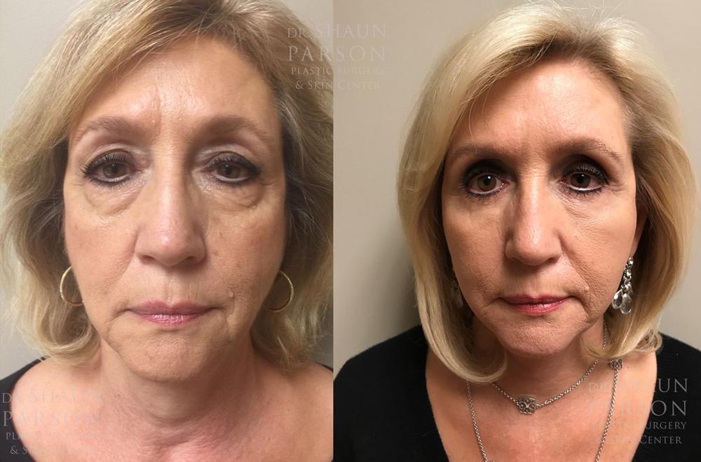 Eyelid Surgery Patient 25 | Dr. Shaun Parson Plastic Surgery, Scottsdale, Arizona