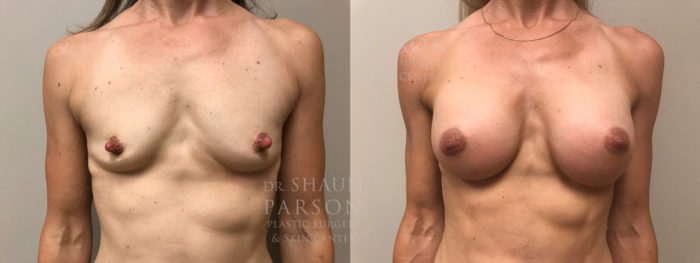 Breast Augmentation Patient 38 | Dr. Shaun Parson Plastic Surgery, Scottsdale, Arizona