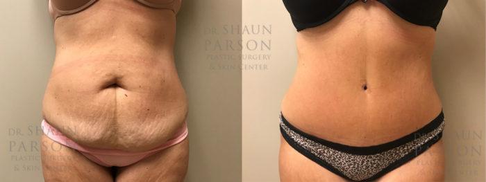 Tummy Tuck Patient 27 | Dr. Shaun Parson, Scottsdale
