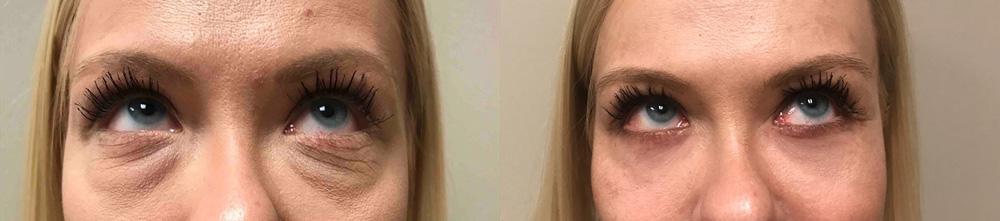 Eyelid Surgery Patient 26 | Scottsdale Plastic Surgeon