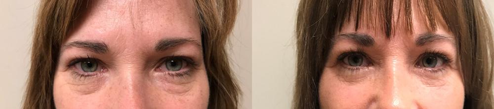 Eyelid Surgery Patient 27 | Scottsdale Plastic Surgeon