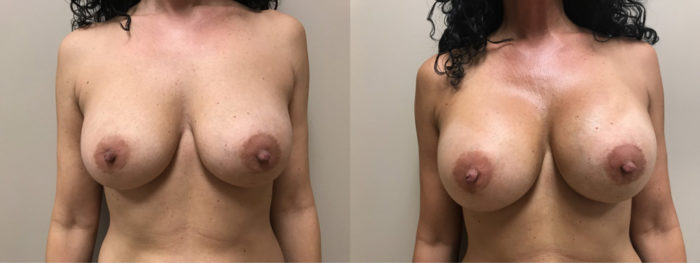 Breast Revision Patient 14 | Dr. Shaun Parson Plastic Surgery & Skin Center