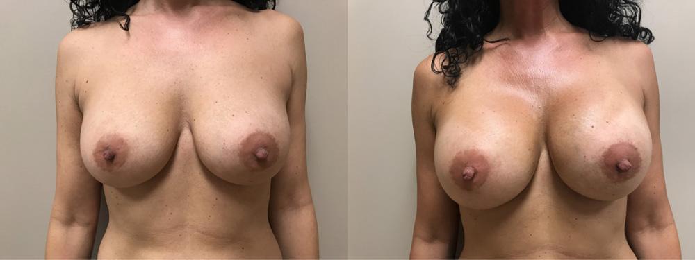 Breast Revision Patient 14 | Dr. Shaun Parson Plastic Surgery & Skin Center