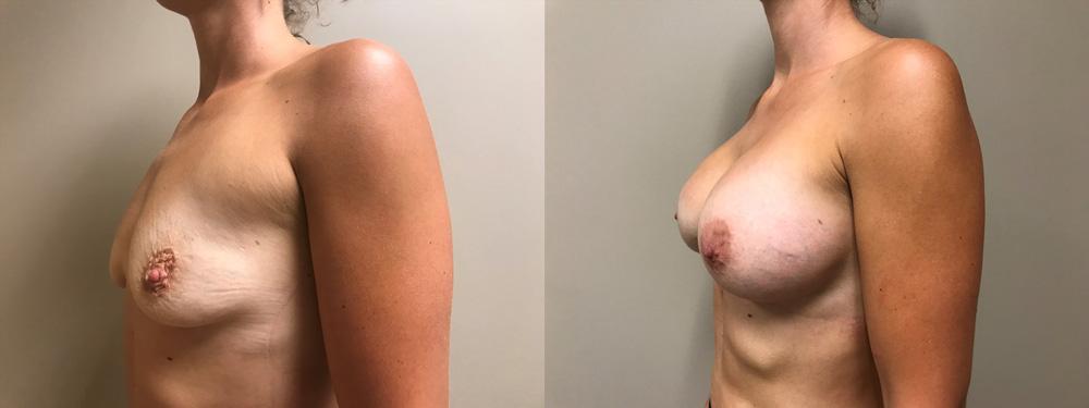 Breast Augmentation Patient 39 | Scottsdale Plastic Surgeon