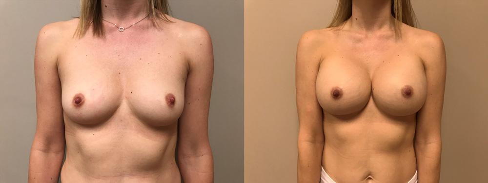 Breast Augmentation Patient 41 | Scottsdale Plastic Surgeon Dr. Shaun Parson