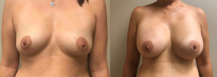 Breast Augmentation Patient 40 | Dr. Shaun Parson Scottsdale, AZ