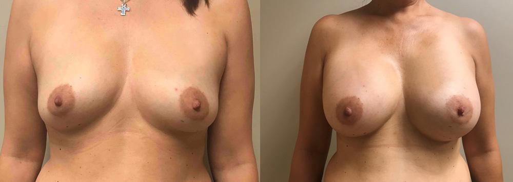 Breast Augmentation Patient 40 | Dr. Shaun Parson Scottsdale, AZ