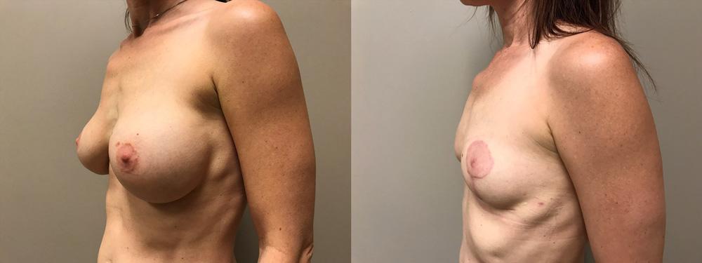 Explant Patient 6 | Scottsdale Plastic Surgeon Dr. Shaun Parson
