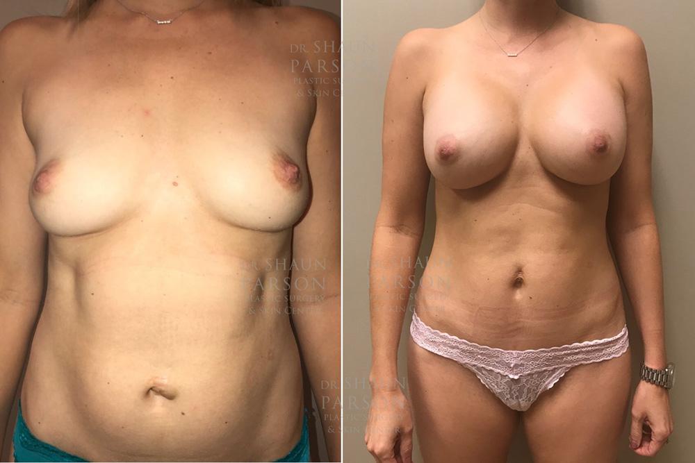 Mommy Makeover Patient 7 | Scottsdale Plastic Surgeon Dr Shaun Parson